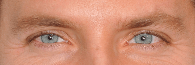 celebrity eye image