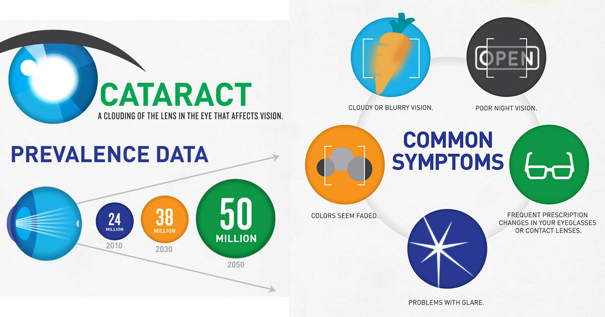 infographic of cataract